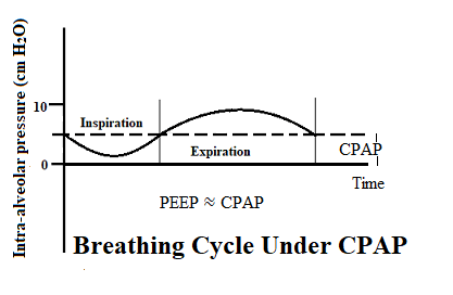 Breathing Cycle Under CPAP