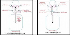 partial rebreathing mask, non-rebreathing mask