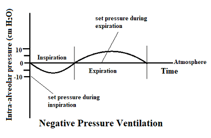 Breathing Cycle Under Negative Pressure Ventilation