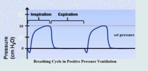 Breathing Cylce under Positive Pressure Ventilation