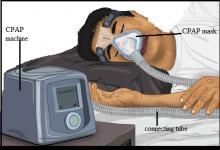 CPAP: Operation, Principal, Handling,