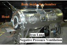Negative Pressure Ventilation