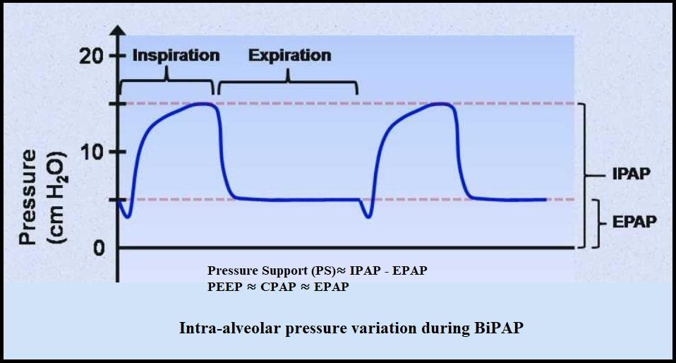 Breathing Cycle Under BiPAP