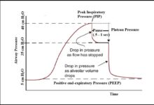 Airway Pressure:- Peak Pressure, Plateau Pressure and Lung Compliance