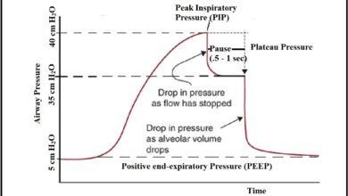 Airway Pressure:- Peak Pressure, Plateau Pressure and Lung Compliance