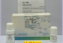 CK-MB:- Range, Symptom and Immunoinhibition Method of Testing