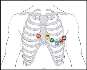 Placement of chest electrodes for ECG