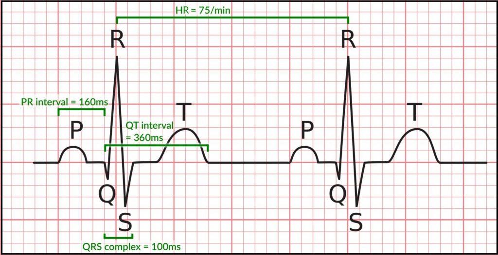 Normal Range of ECG